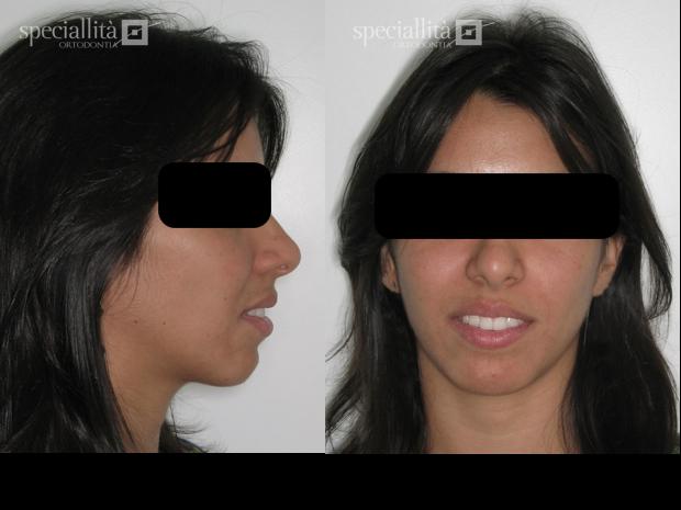 ... da face aumentado. Ausência de selamento labial 620 x 465 - 228kB